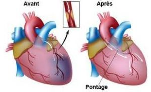 Pontage coronarien